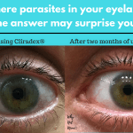Are there parasites in your eyelashes? The answer may surprise you!