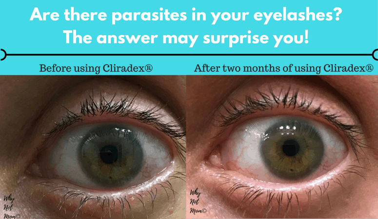 Before and after picture of treatment using Cliradex for ocular demodicosis or demodex. Order here: https://whynotmom.com.anrdoezrs.net/click-7679915-13056801