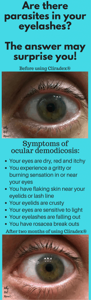Before and after picture of treatment using Cliradex for ocular demodicosis or demodex: order here:https://whynotmom.com.anrdoezrs.net/click-7679915-13056801