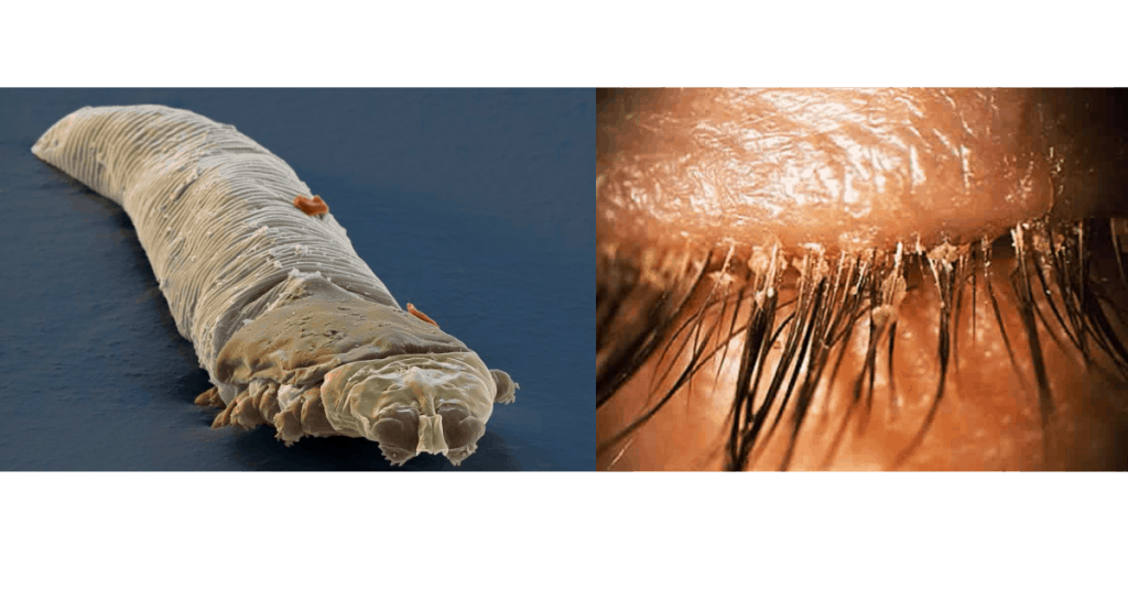 infestation of demodex can look like really bad crusty eyelashes
